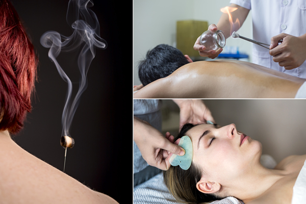 Cupping-Gua Sha-Moxibustion-large
